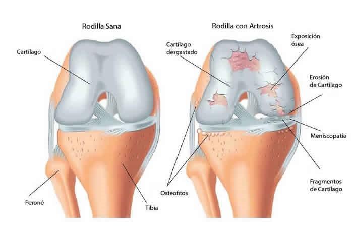 Resultado de imagen de artrosis de rodilla