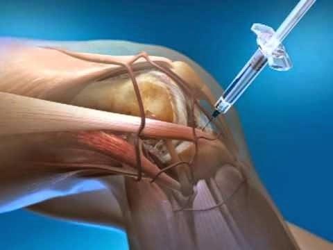 Resultado de imagen de puncion intraarticular de rodilla