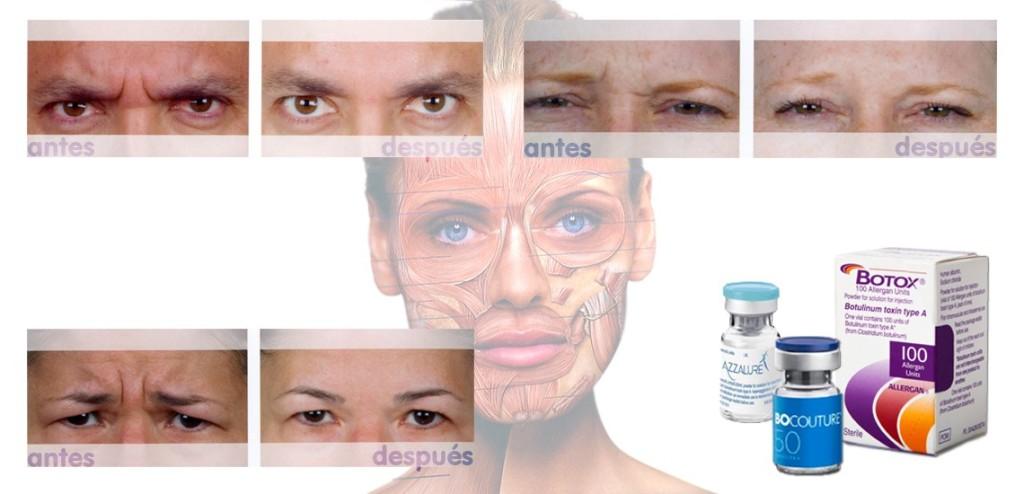 Resultado de imagen para toxina botulinica
