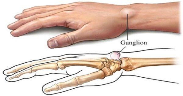 Resultado de imagen de gangliones
